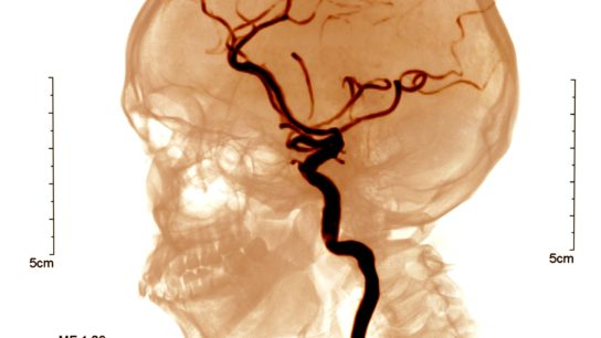 X-ray image of cerebrovascular disease