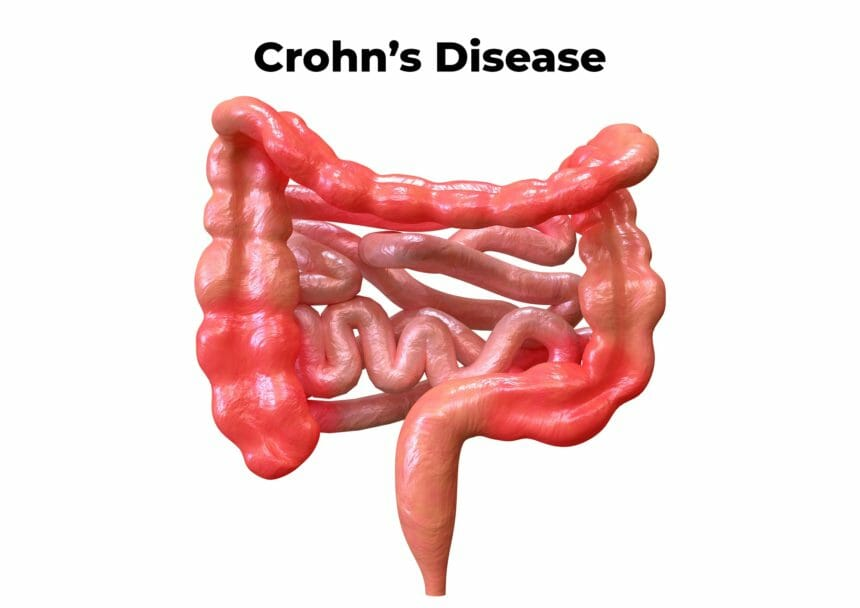 Illustration of Crohn's Disease