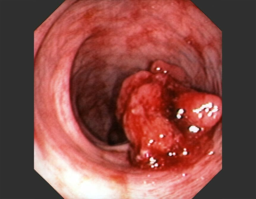 Colonoscopy of the sigmoid colon showing a hemorrhagic pedunculated polyp