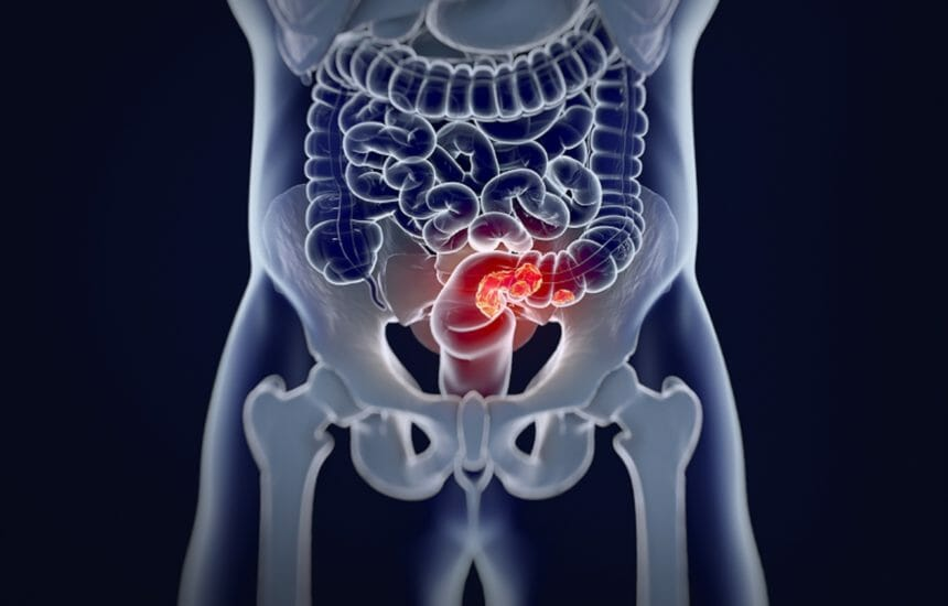 Colorectal cancer,medical anatomical illustration