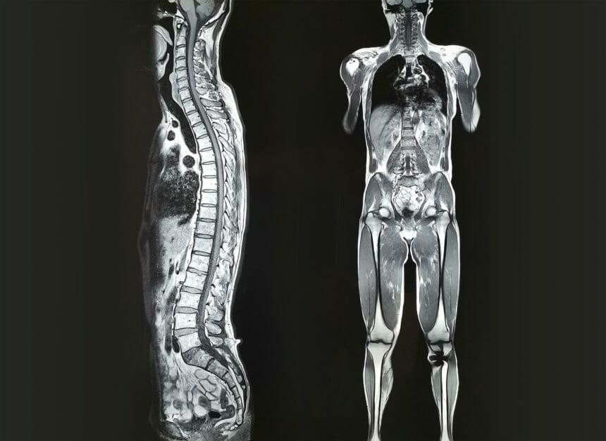 Whole Body Mri For Identifying Metastatic Disease In Colorectal Cancer Gastroenterology Advisor