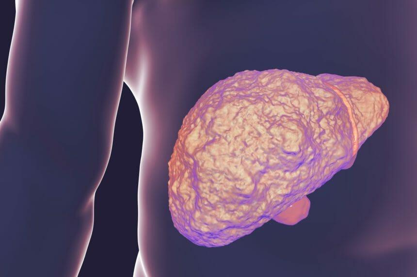 Liver Cirrhosis