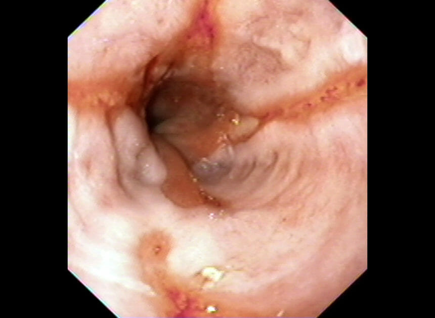 Endoscopy of the esophagus showing grade 2 esophagitis